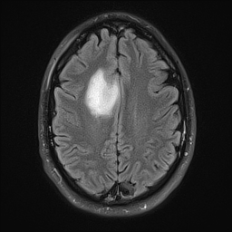 Phil's brain, top view, reversed (MRI image)